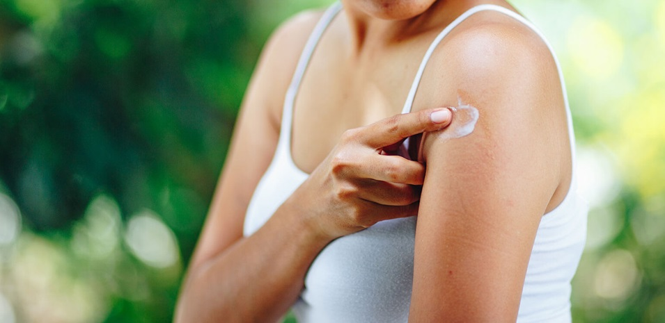 A young woman applying an anti-itch lotion to a mosquito bite on her arm.